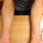 漢方薬でアトピー性皮膚炎が劇的に改善した!