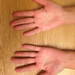 食物アレルギーの影響が強い「手のかゆみ」