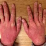 添加物アレルギーで手湿疹が悪化してしまった