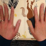 ストレスで悪化する手の湿疹(前回の続き)
